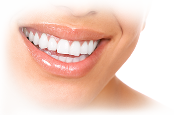 porcelain veneers houston