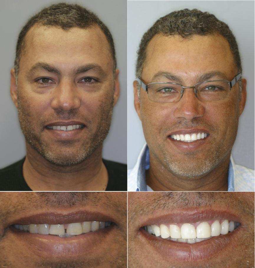 отбеливание зубов блендамед