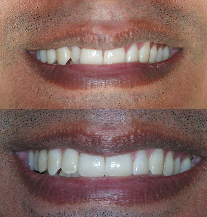 invisalign-before-after-1