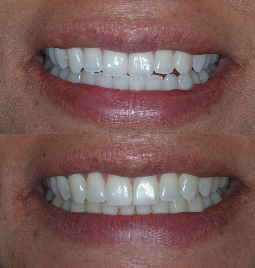 invisalign-before-after-3