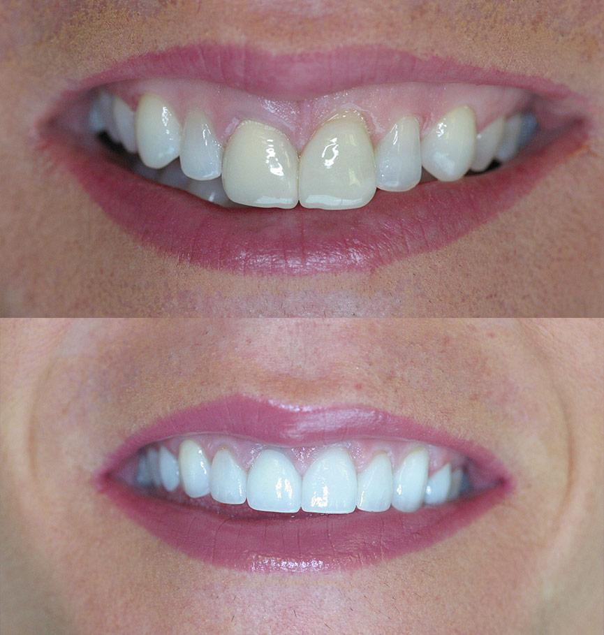 porcelan-veneers-before-after-6