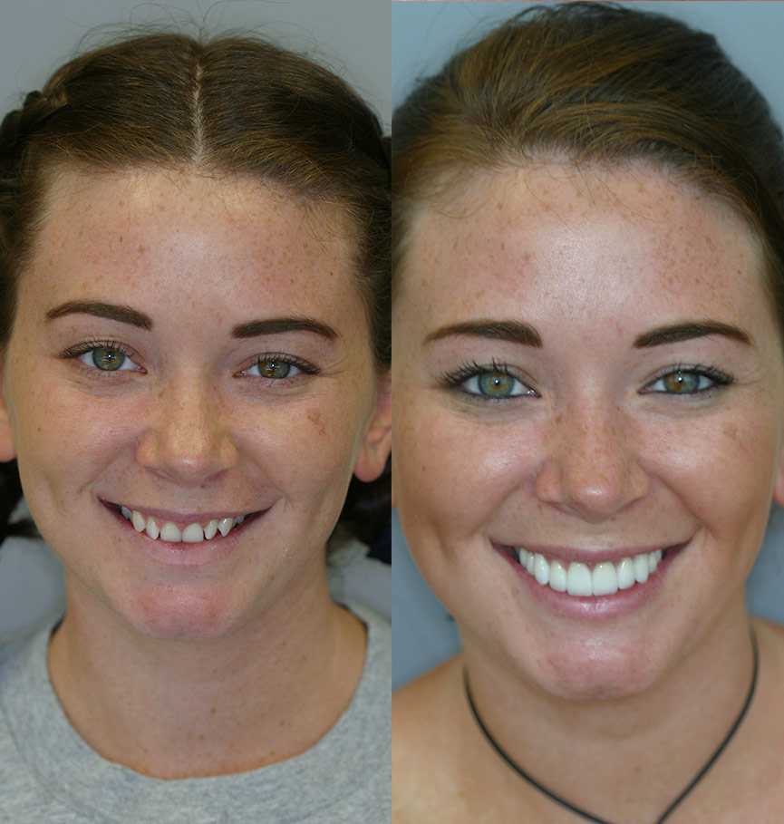crowns-before-after-1