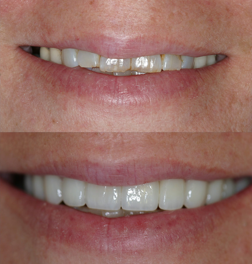 crowns-before-after-3