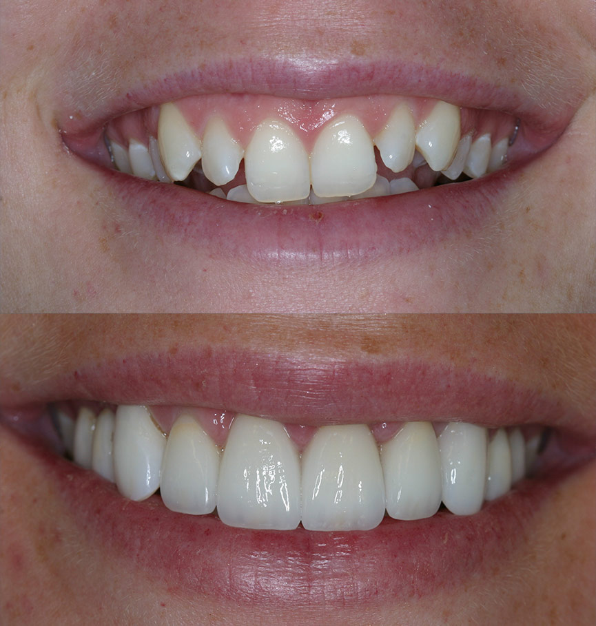 crowns-before-after-4