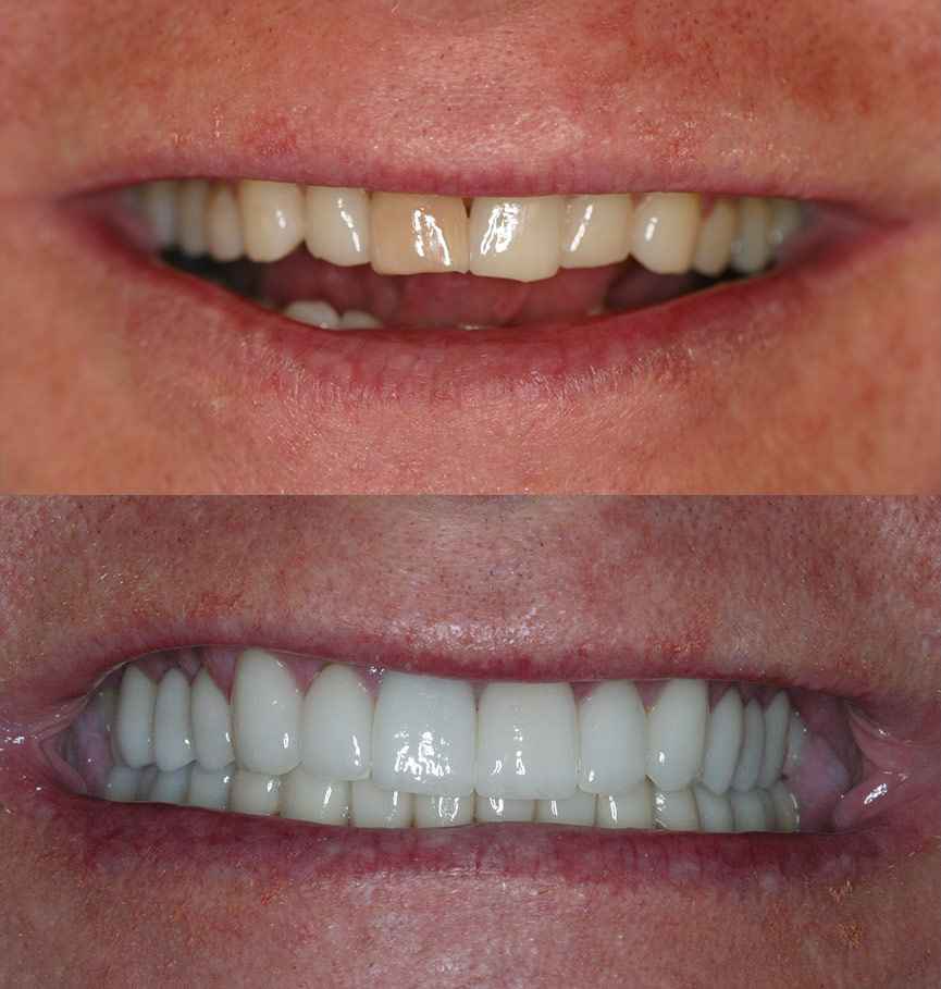 crowns-before-after-5