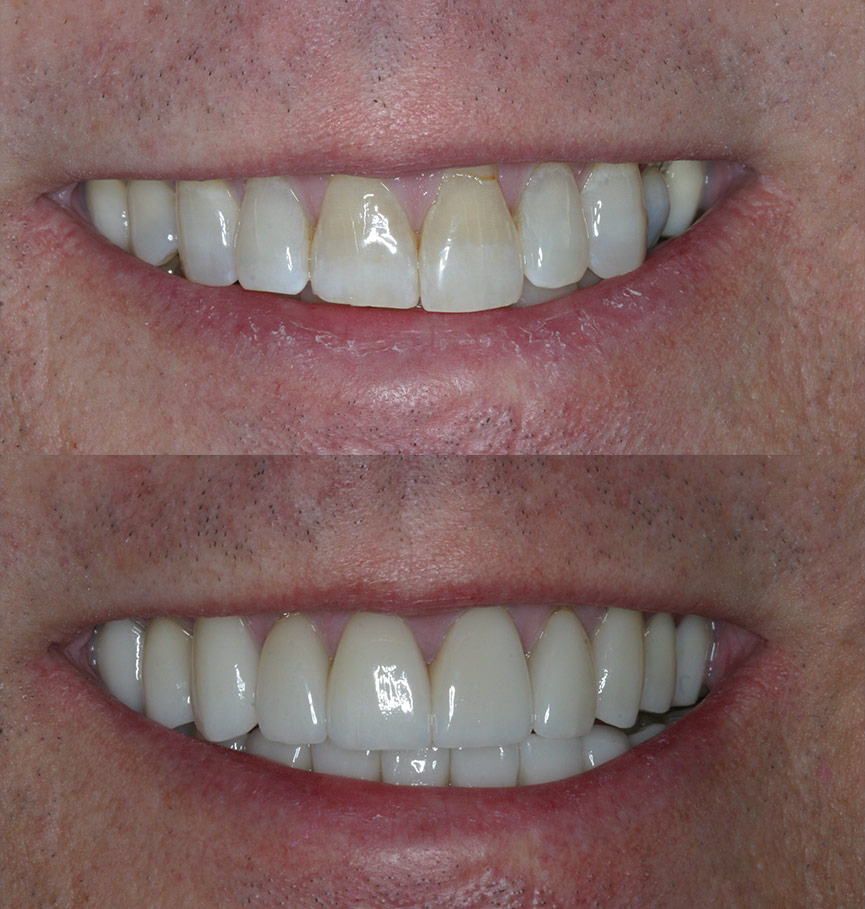 crowns-before-after-6