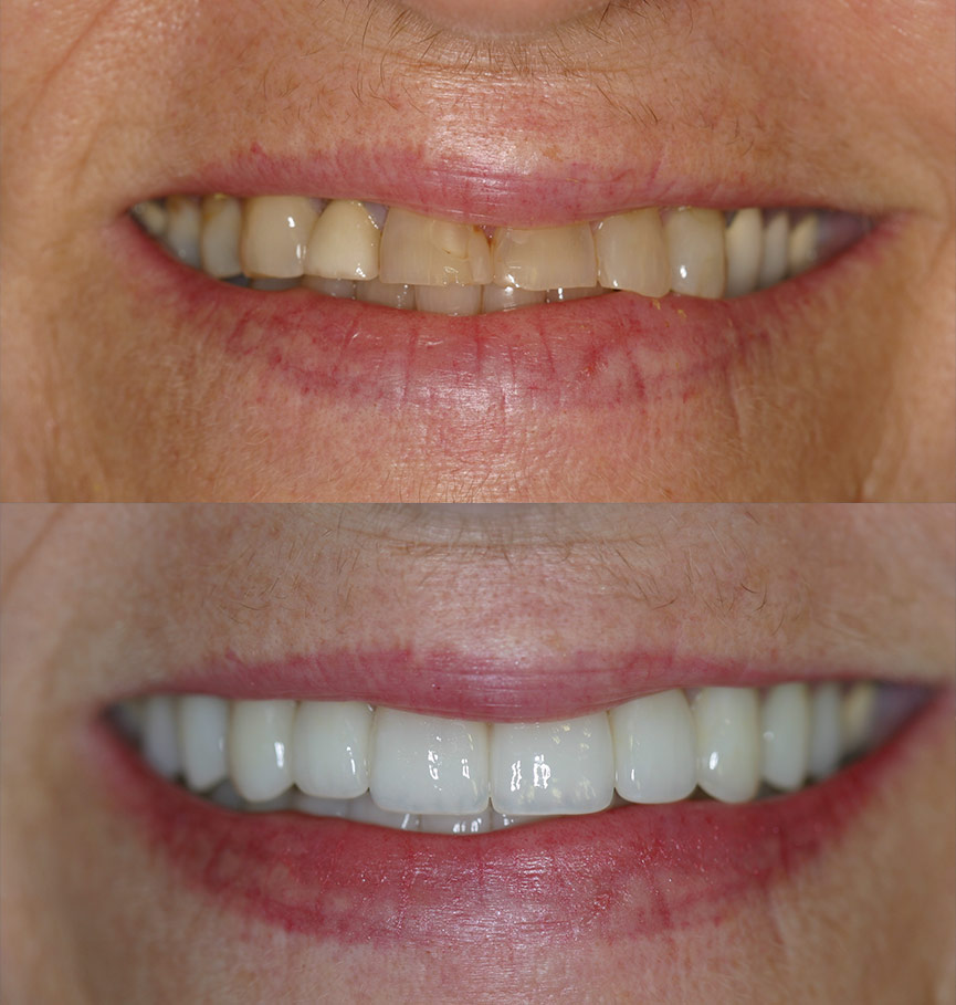 crowns-before-after-9