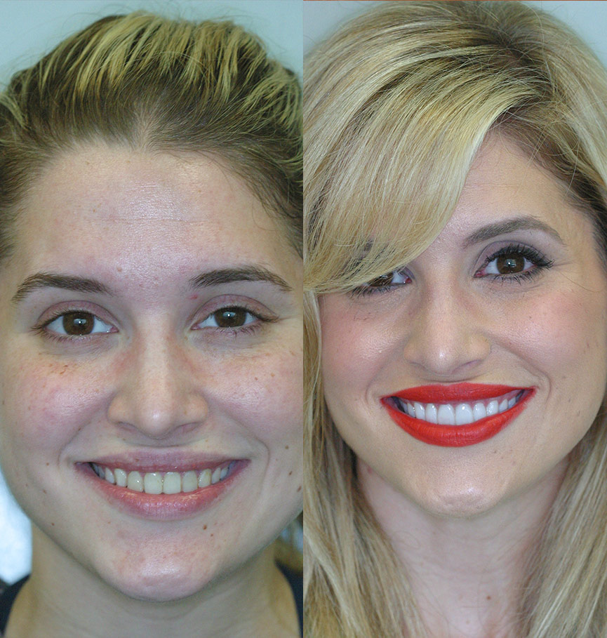 porcelan-veneers-before-after-1