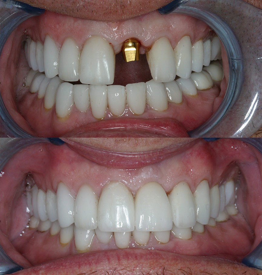 retained-before-after-1